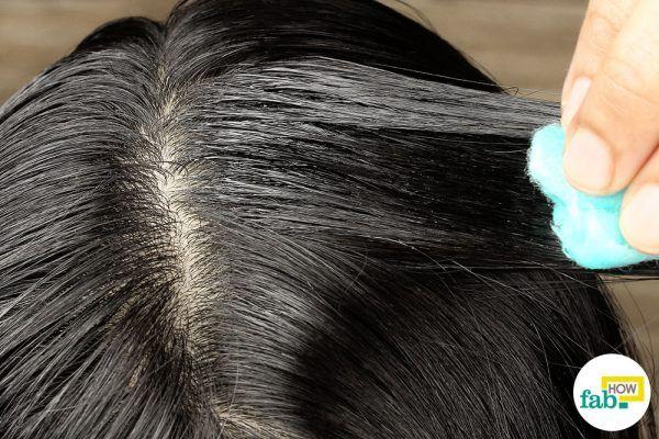 नारियल तेल से सिर की त्वचा में मालिश कीजिये