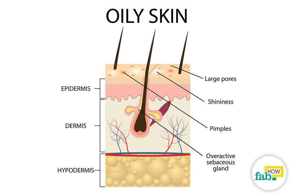 तैलीय त्वचा से छुटकारा पाने के घरेलू उपाय