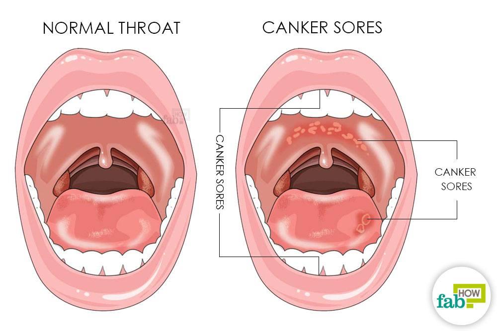 मुंह में छाले होने के लक्षण