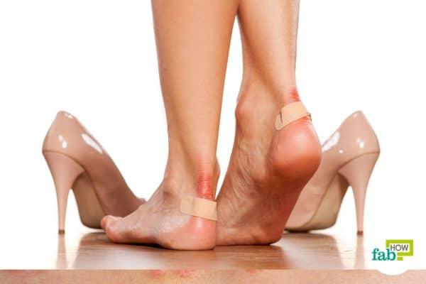 आसान तरीकों से पायें जूते के काटने से छुटकारा