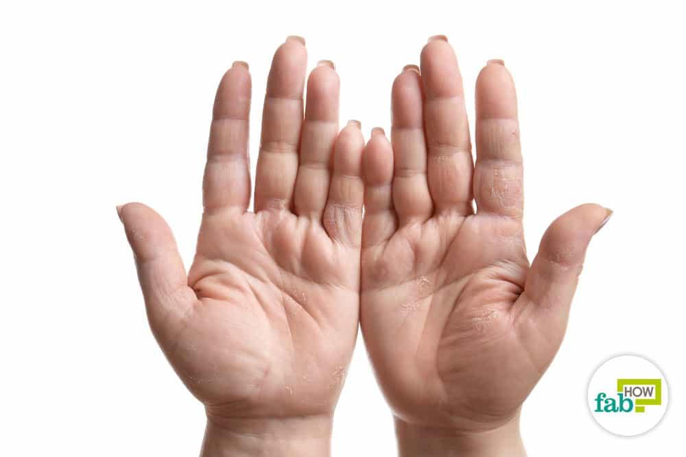प्रतिदिन रासायनिक पदार्थों और प्रदूषण के संपर्क में रहने से आपके हाथ रूखे हो जाते हैं