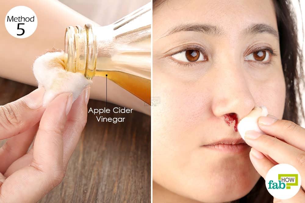 नकसीर फूटने पर सेब के सिरके का इस्तेमाल कीजिये