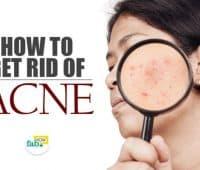 मुंहासों (Acne) को जड़ से ख़त्म करने के घरेलु उपचार