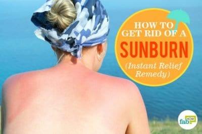 प्राकृतिक तरीकों से पायें सनबर्न से छुटकारा