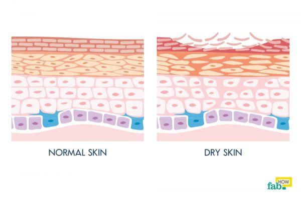 रूखी और खुजली वाली त्वचा से छुटकारा पाने के 6 घरेलू इलाज